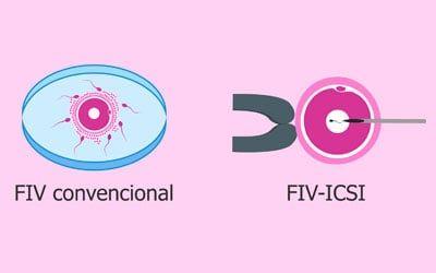 Diferencias entre FIV e ICSI