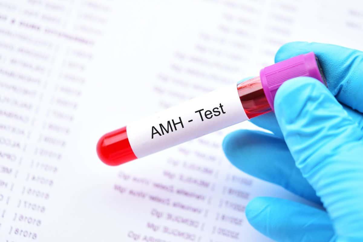 Hormona Antimulleriana. ¿Predicción de tu función ovárica