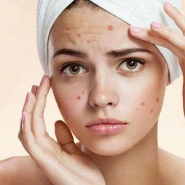 sop y acne