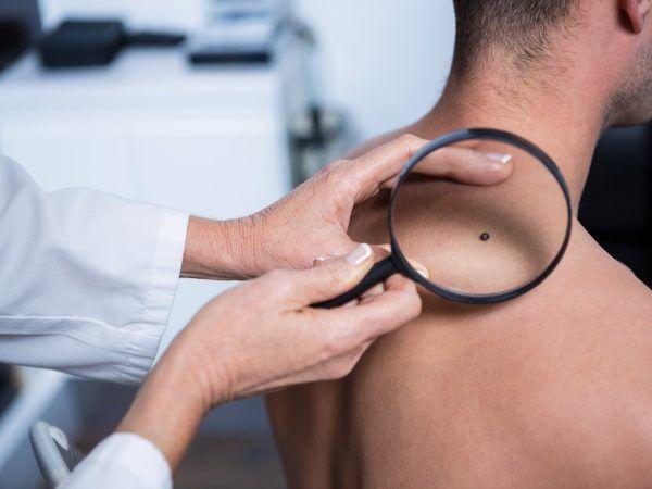Electrocoagulación de distintas lesiones