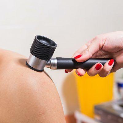 Examen Dermatoscópico