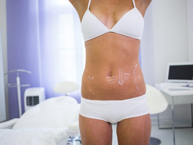 Mid section of female body with the drawing arrows for abdomen for liposuction and cellulite removal